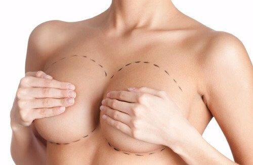 mamoplastia bröstlyft